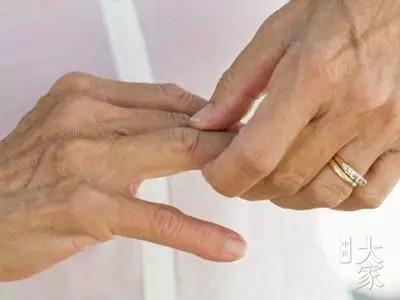 左常波:类风湿性关节炎的简易疗法